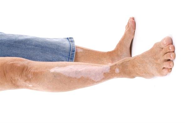 引起患者腿部白癜风的因素有哪些