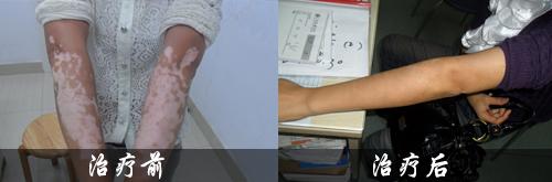 肢端型白癜风发病的原因有什么